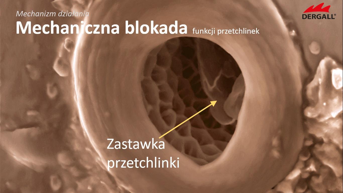 zwalczanie-ptaszynca-isotech-12